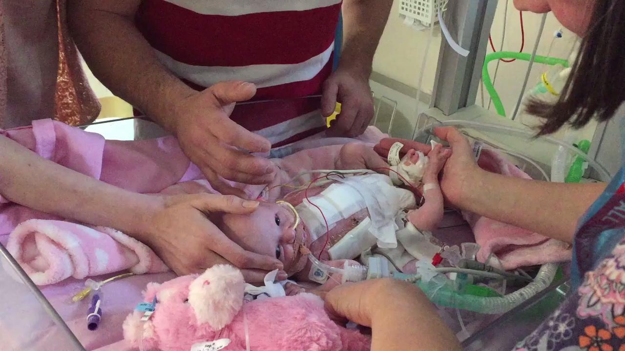 Primer bebé británico que sobrevive tras nacer con el corazón fuera