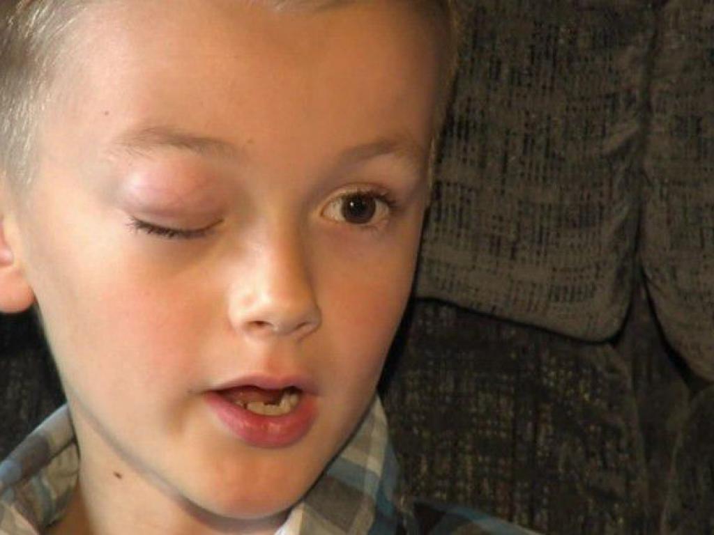 263fcb6001 El niño que donó pelo para enfermos de cáncer ahora lo padece él ...